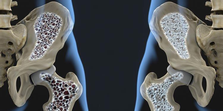 نکته بهداشتی: پیشگیری از پوکی استخوان